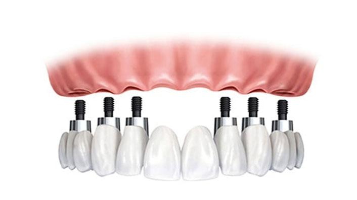 Metal Cerámica / Zirconio sobre 6 implantes