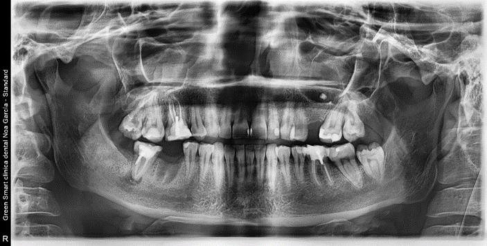 Ortopantomografías y Teleradiografías digitales