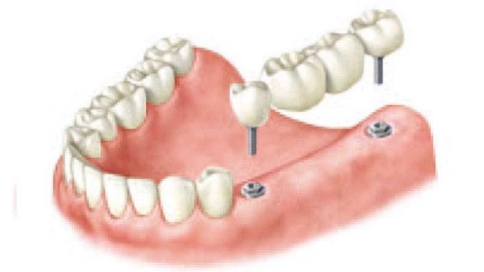Puente entre implantes