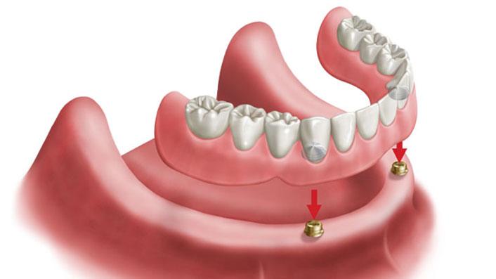Removible sobre 2 implantes